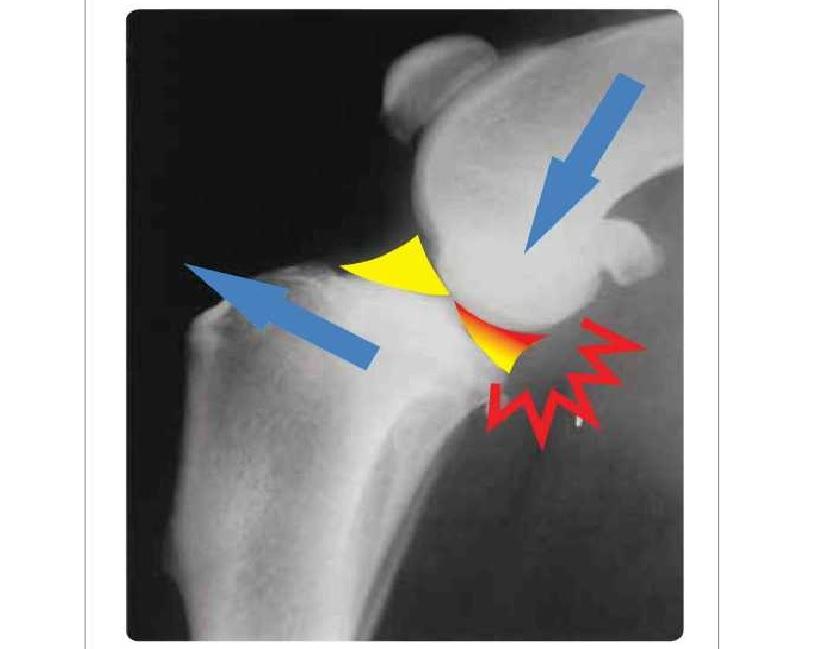 Аппарат на коленный сустав 8-97 болят суставы как их лечить